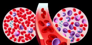 леукемија лек