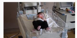 жан митрев, операција на срце, бебе